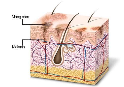 Cơ chế của hiện tượng nám da