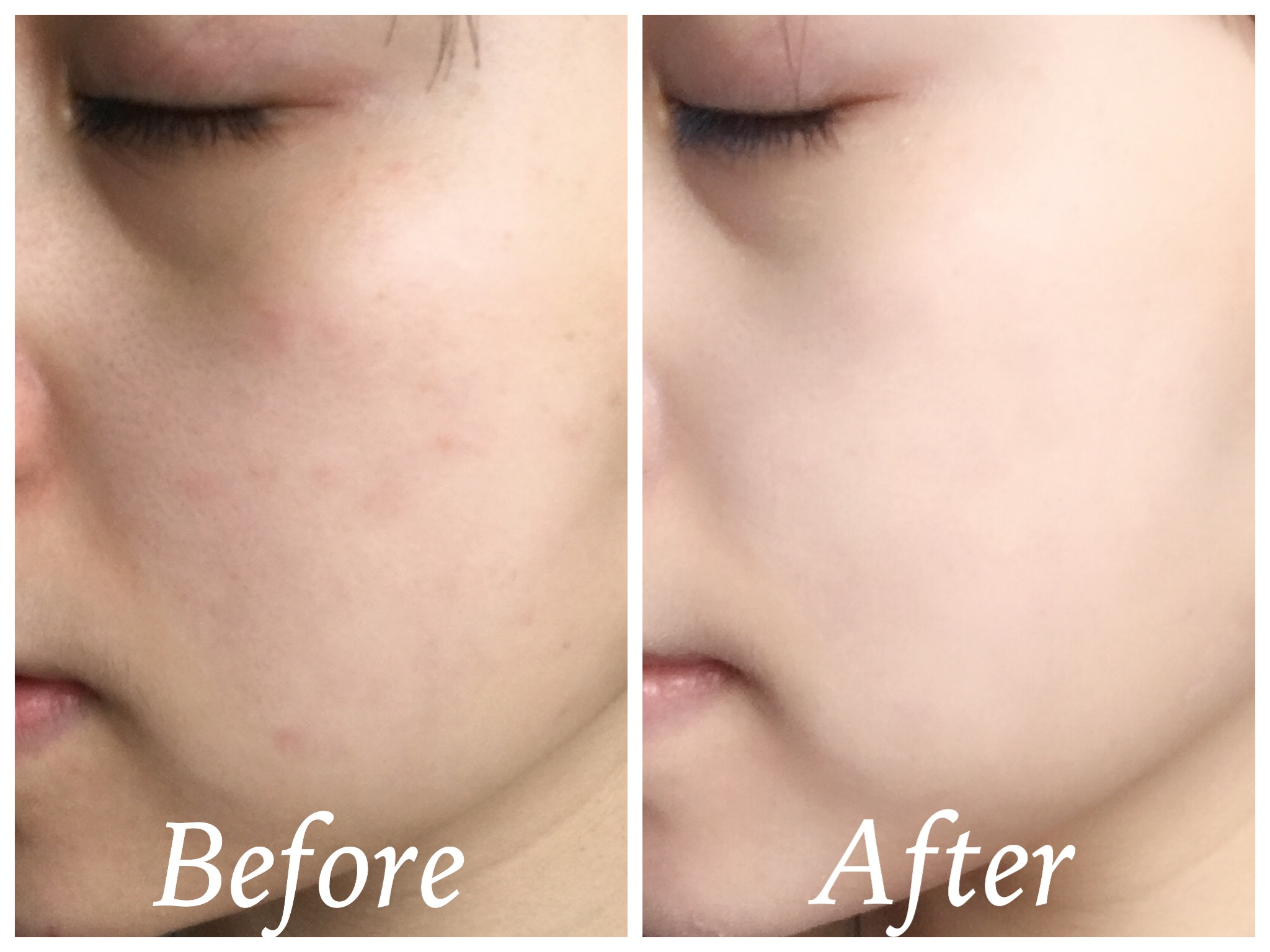 Lime-white-flowers-tone-up-cream-before-after