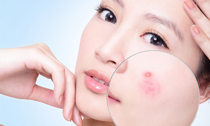 Bụi bẩn, bã nhờn không thể làm sạch bằng nước thông thường có thể gây ra những tổn thương cho da mặt.