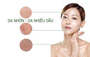 Da dầu mụn gây ảnh hưởng xấu cho làn da