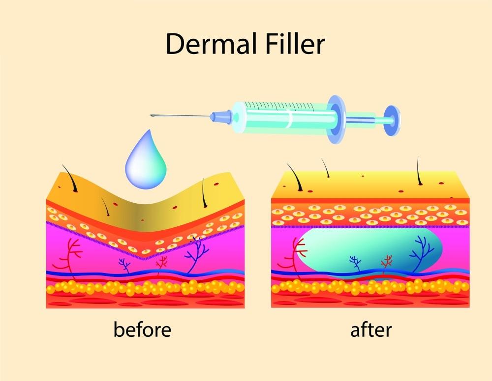 Cơ chế hoạt động của tiêm filler
