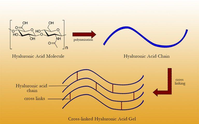Hyaluronic Acid (HA) Filler