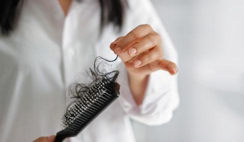 điều trị rụng tóc sau sinh