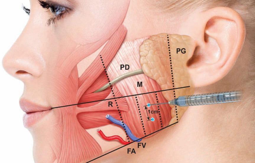 cơ chế tiêm botox gọn hàm