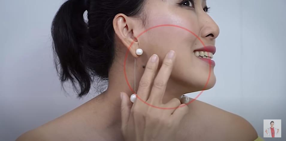 tiêm botox gọn hàm 6