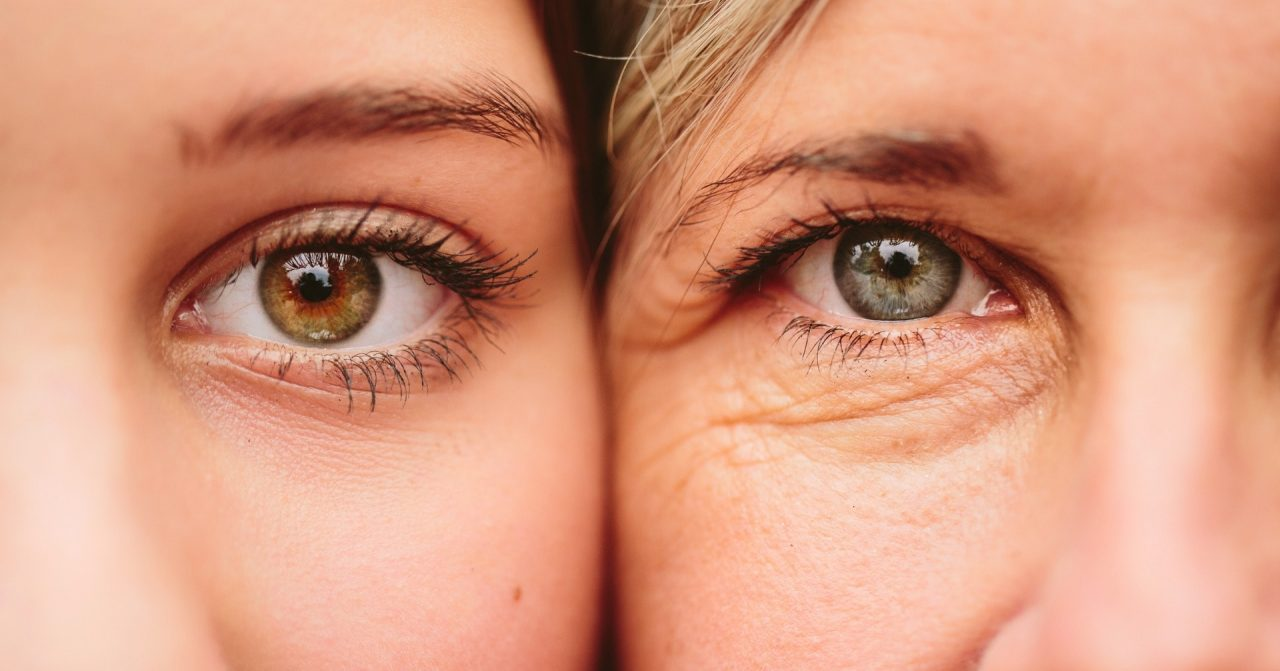 trị nhăn mắt 1