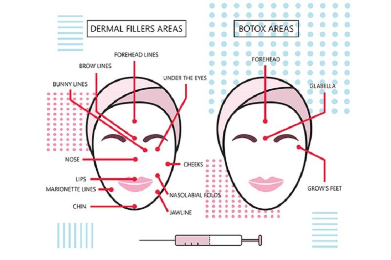 so sánh tiêm botox và filler