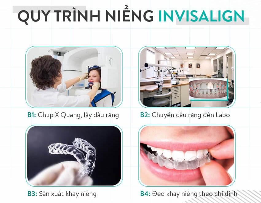 quy trình niềng răng thẩm mỹ invisalign
